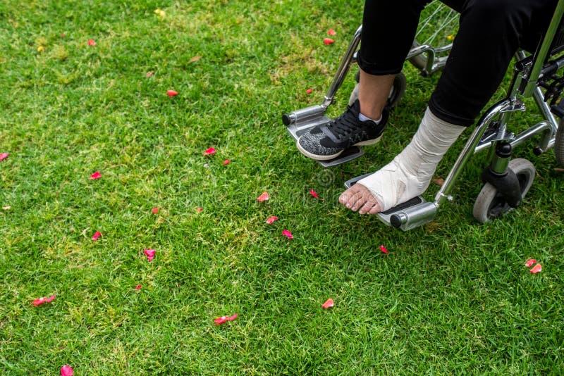 Gezien van boven voeten in een rolstoel Voet met verstuiking op grasbodem royalty-vrije stock afbeelding