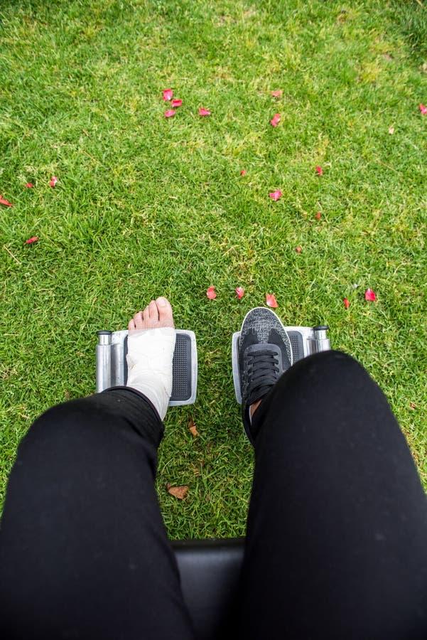 Gezien van boven voeten in een rolstoel Voet met verstuiking op grasbodem royalty-vrije stock afbeeldingen