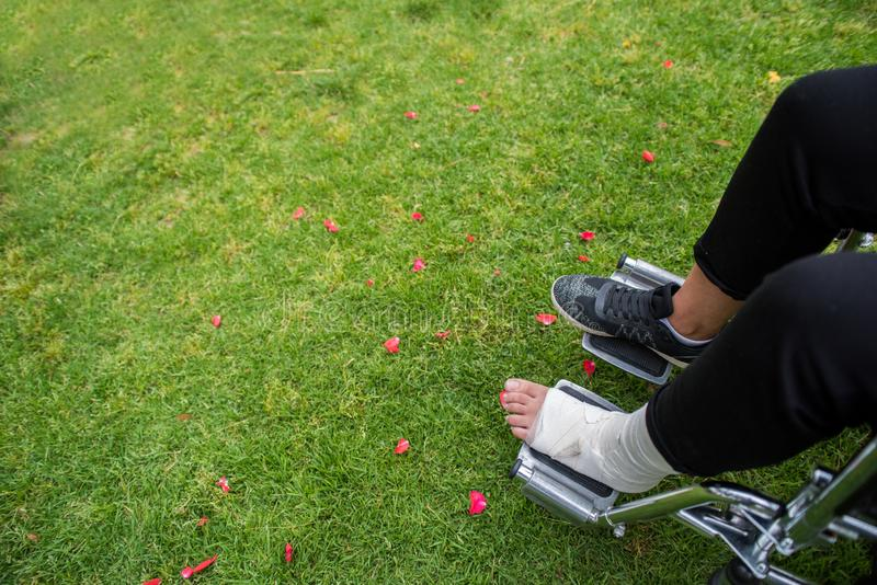 Gezien van boven voeten in een rolstoel Voet met verstuiking op grasbodem stock fotografie