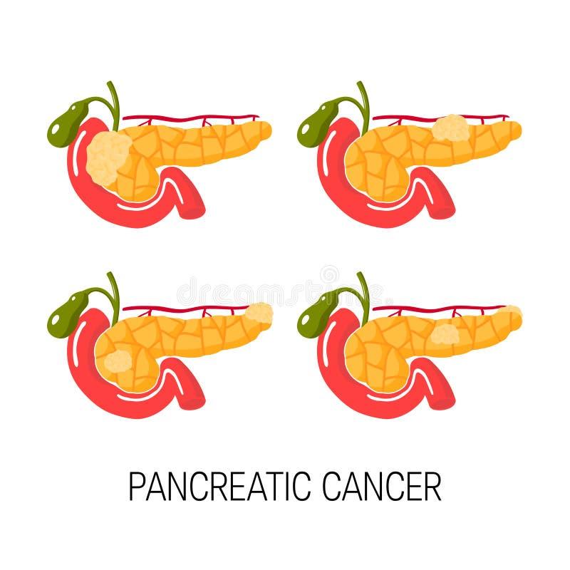 Gezond alvleesklierconcept Vector illustratie stock illustratie