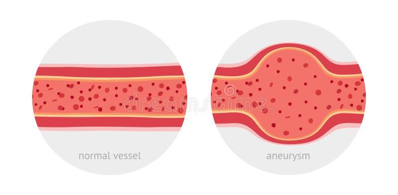 Gezond en ziek aneurisma menselijk schip royalty-vrije illustratie