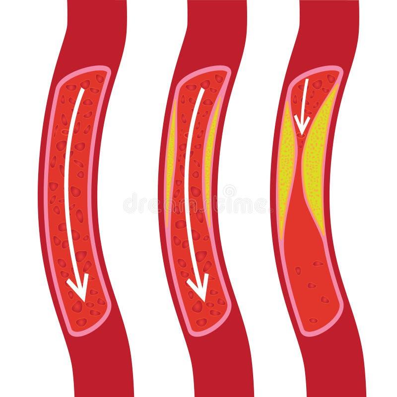 Gezond, gedeeltelijk geblokkeerd bloedvat en geblokkeerde bloedvatenillustratie royalty-vrije illustratie