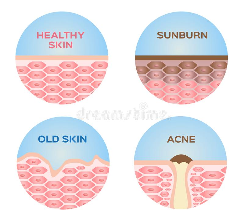 Gezonde huid, zonnebrand, oude huid en acne 4 reeks stock illustratie