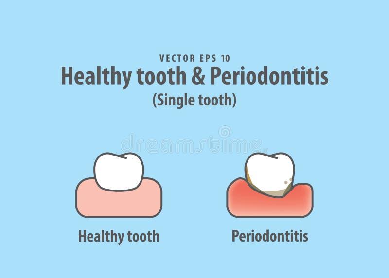 Gezonde tand & de tandillustratievector van Periodontitis Enige stock illustratie