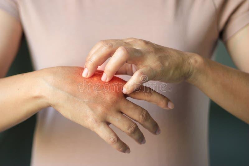 Gezondheidszorg en Medisch Concept Vrouwelijke het krassen jeuk op haar hand stock afbeelding