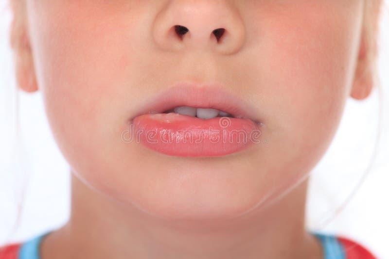 Gezwelde lip na wespsteek stock afbeeldingen