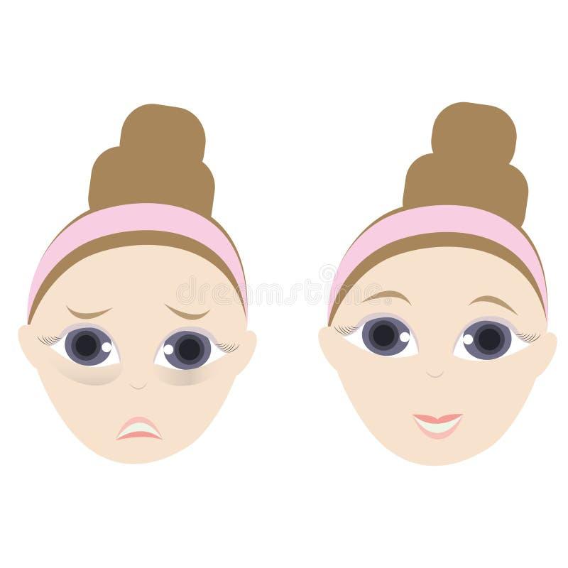 Gezwollen ogen vector illustratie