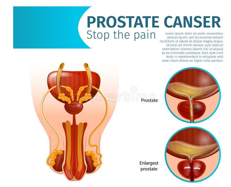 colore della ghiandole prostata