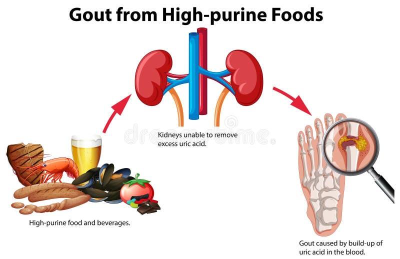 Gikt från Hög-purine Foods vektor illustrationer