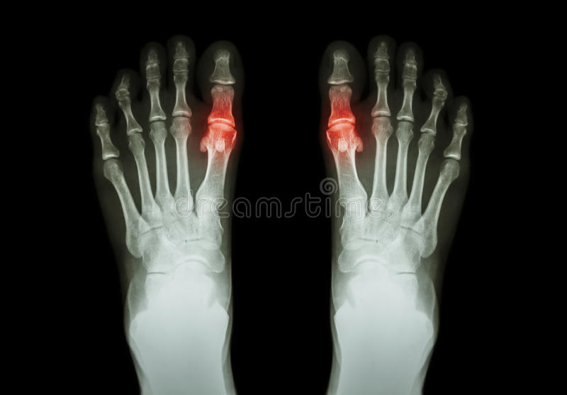 Gikt reumatoid artrit (den filmröntgenstrålebåde foten och den metatarsophalangeal skarven för artrit först) (medicin- och vetens arkivfoton