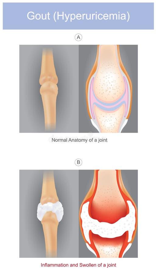 gikt Som illustreras en form av artrit, som kan vara intensely smärtsam det, orsakas genom att ha natriumuratekristaller i skarva vektor illustrationer