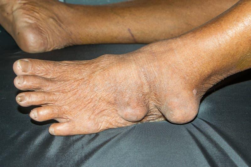 Giktbruten artrit royaltyfri fotografi