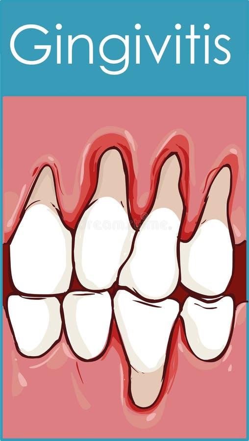 gingivitis ilustración del vector