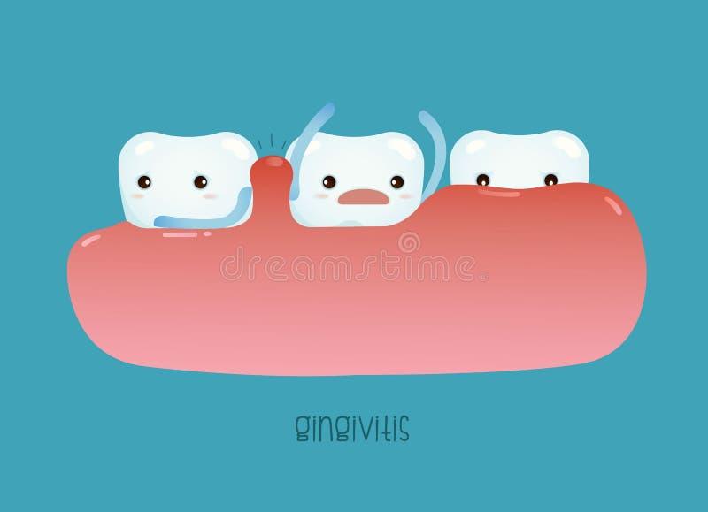 Gingivitis del vector dental libre illustration