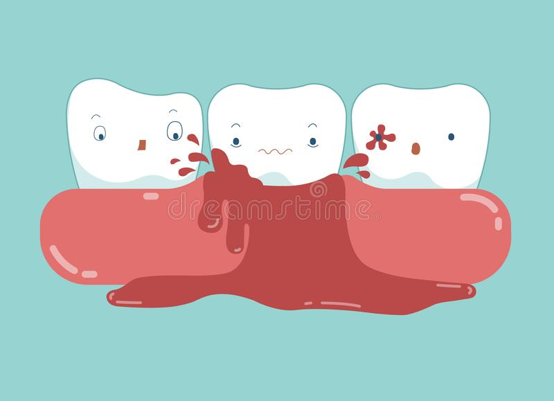 Gingivitis of dental and blood vector.  royalty free illustration