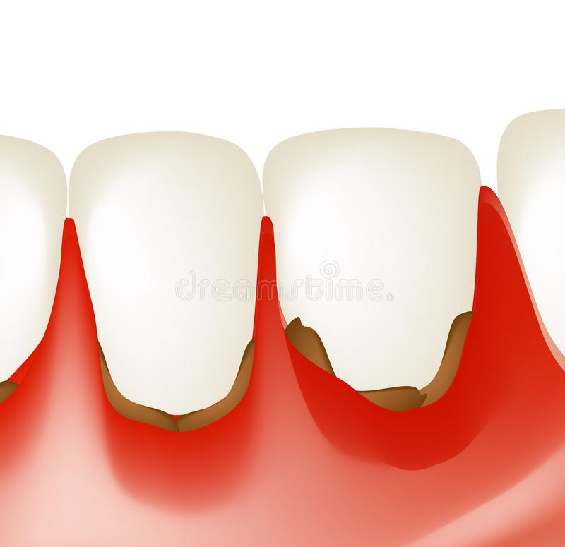 Gingivitis. Inflammation of the gums. Dental calculus. Infographics. Vector illustration on isolated background.  stock illustration