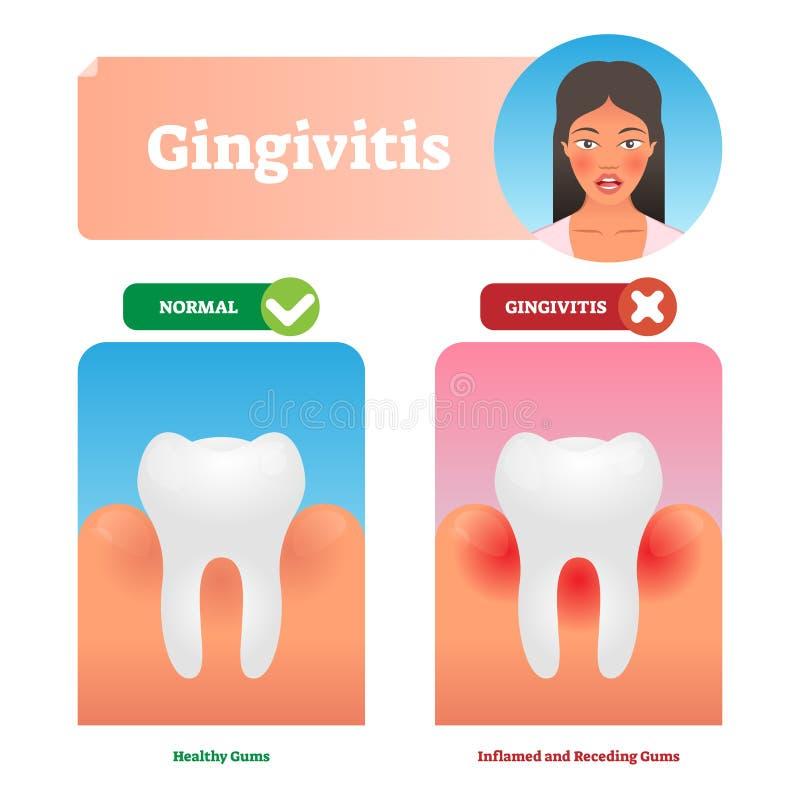 Gingivitis vector illustration. Medical oral mouth illness symptoms example vector illustration