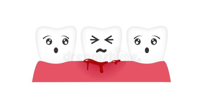 Gingivitis ząb, krwionośny krwawiący wektor/ ilustracja wektor