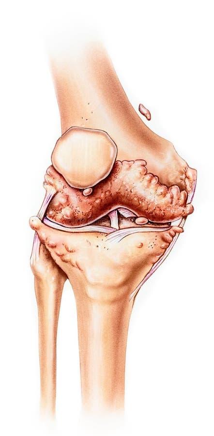 Ginocchio - osteoartrite avanzata, Front View fotografia stock libera da diritti