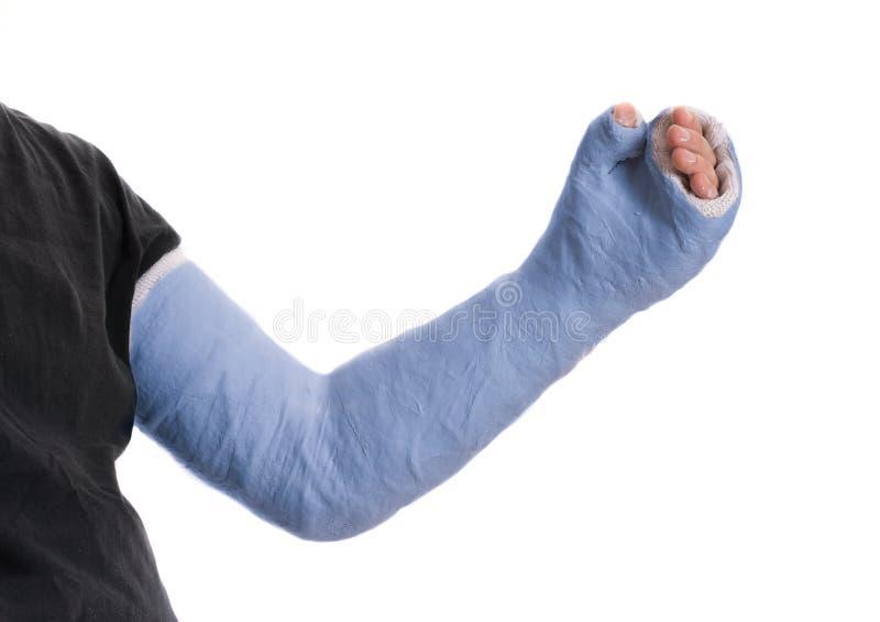 Giovane che indossa una colata lunga blu della vetroresina del gesso del braccio immagine stock