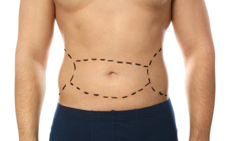 Giovane con i segni sulla pancia per l'operazione della chirurgia estetica contro fondo bianco immagini stock