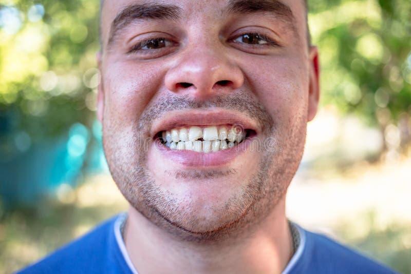 Giovane con un dente scheggiato fotografia stock