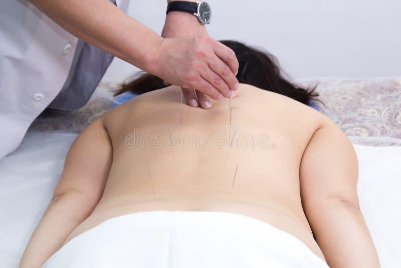 Giovane donna che prende trattamento di agopuntura Inserendo gli aghi nella parte posteriore Vista posteriore fotografie stock