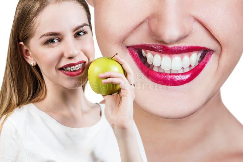 Giovane donna con i sostegni sui denti che mangia mela immagine stock libera da diritti