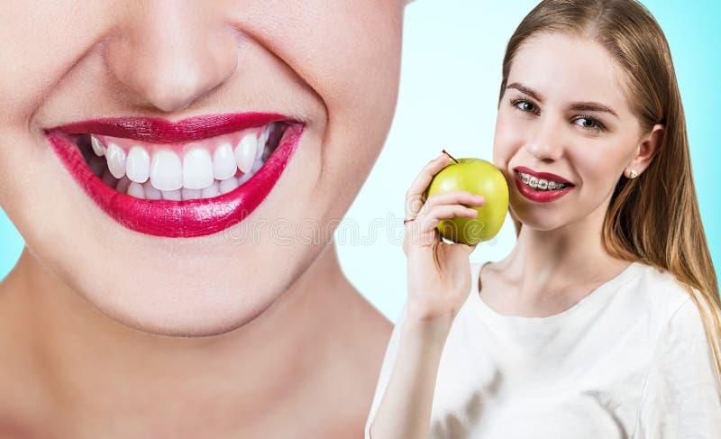 Giovane donna con i sostegni sui denti che mangia mela immagine stock