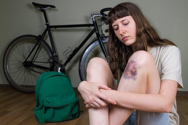 Giovane donna con il ginocchio battuto con hematome dopo il accide della bicicletta fotografie stock libere da diritti