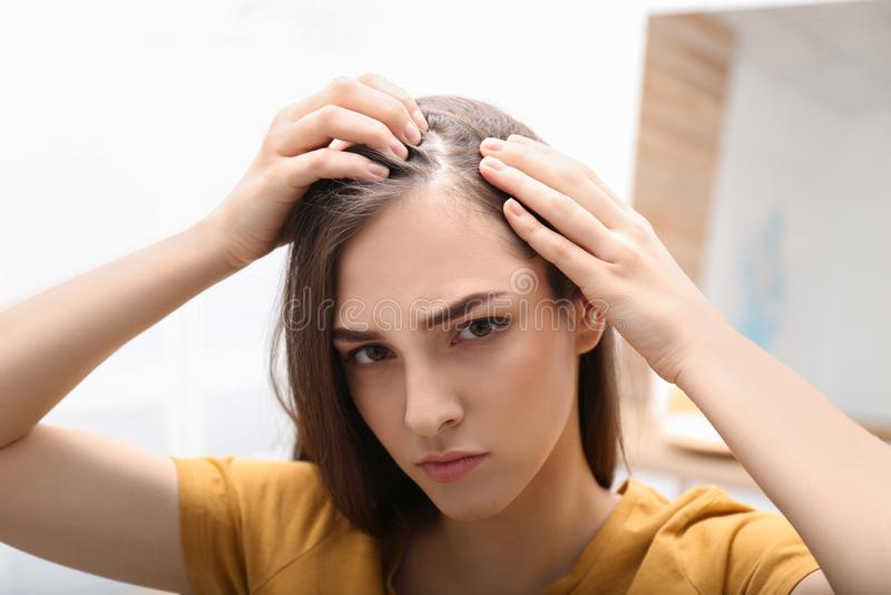 Giovane donna con il problema di perdita di capelli immagine stock libera da diritti