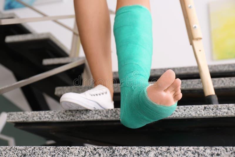 Giovane donna con la gruccia e la gamba rotta in colata immagine stock libera da diritti