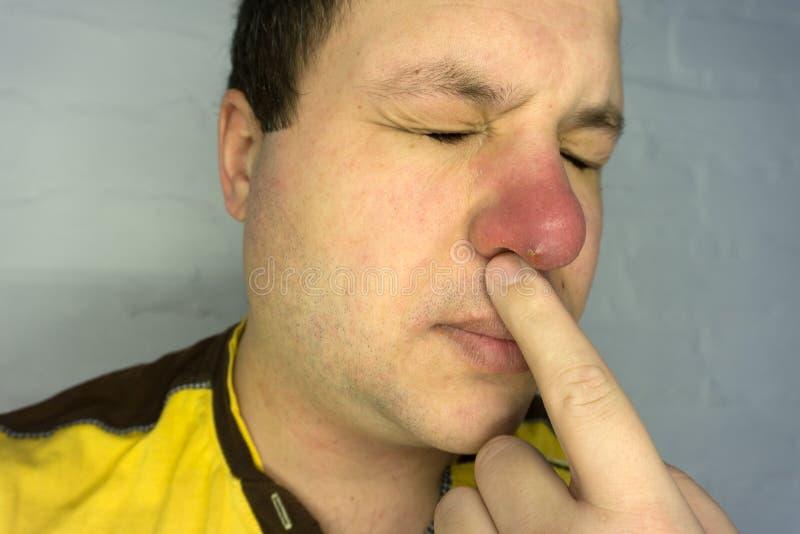 Giovane malato con il naso, la sciarpa ed il cappuccio rossi starnutente nel fazzoletto fotografie stock libere da diritti
