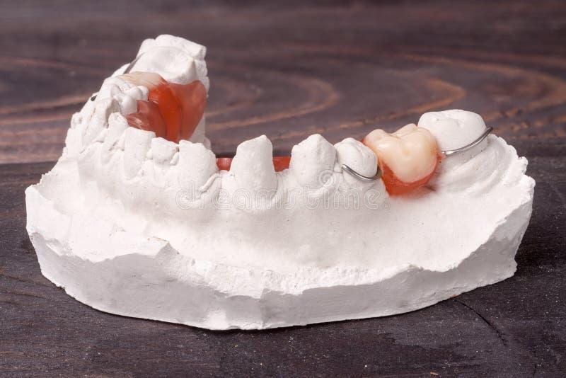 Gipsförband av tänder med den löstagbara partiska tandprotesen på en mörk träbakgrund royaltyfria foton