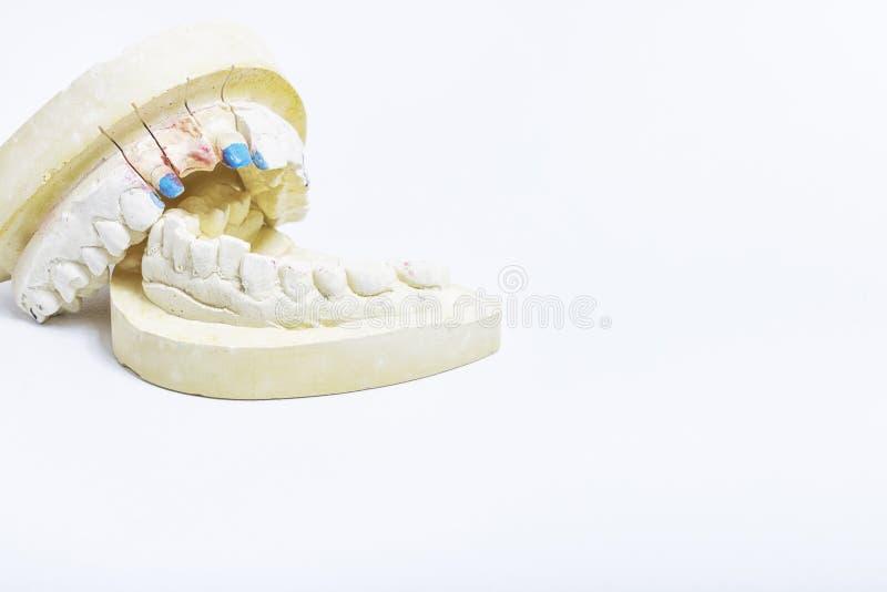Gipsförband av tänder med utrymme för dina texter arkivbilder