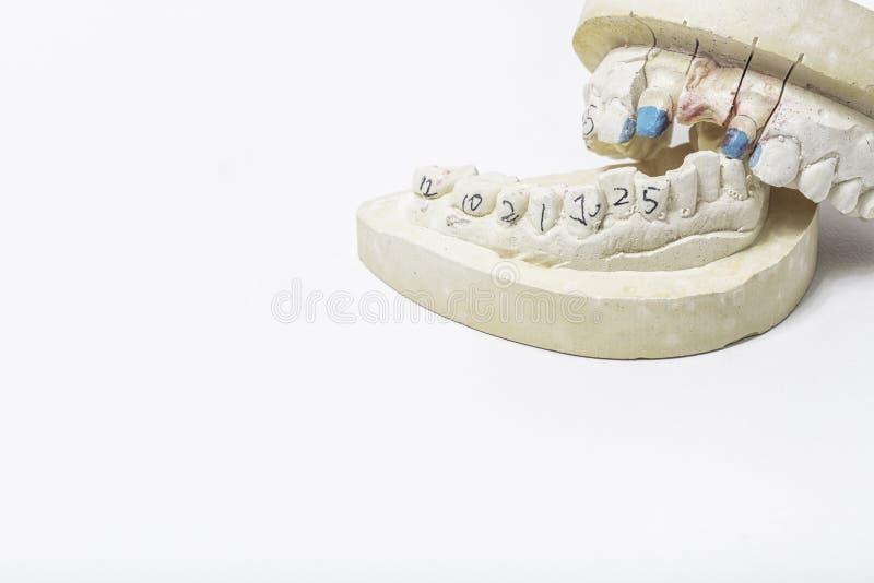 Gipsförband av tänder med utrymme för dina texter arkivfoto