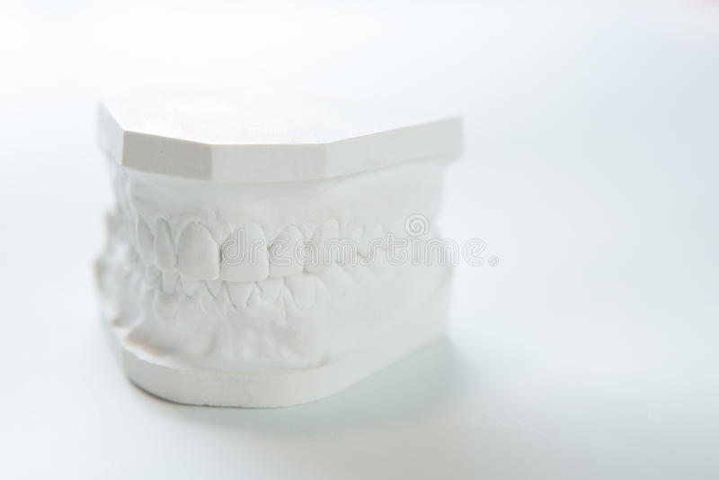 Gipsmodell av den mänskliga käken på en vit bakgrund royaltyfri foto