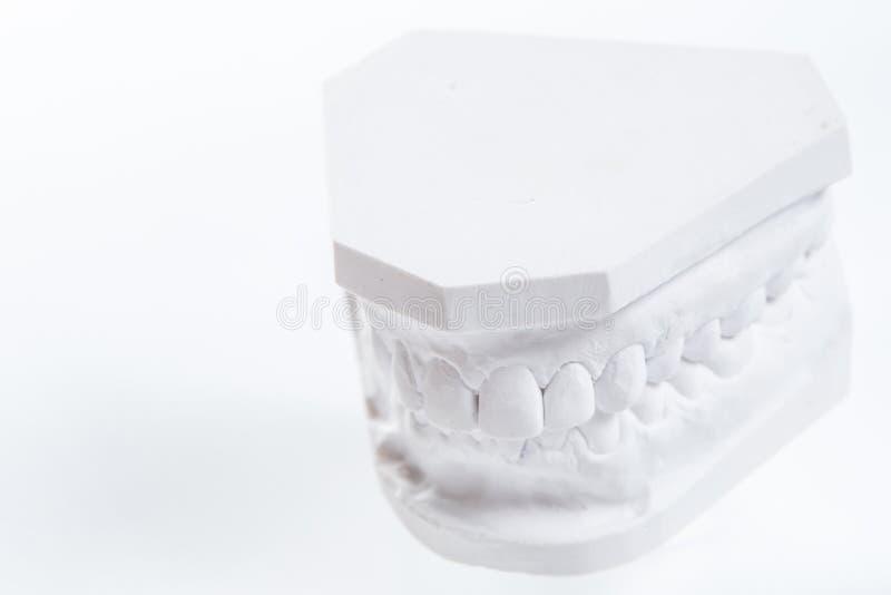 Gipsmodell av den mänskliga käken på en vit bakgrund arkivbilder