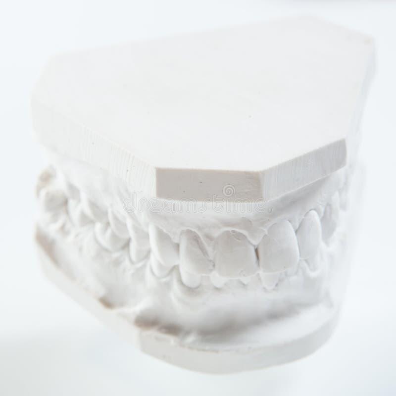 Gipsmodell av den mänskliga käken på en vit bakgrund royaltyfri fotografi