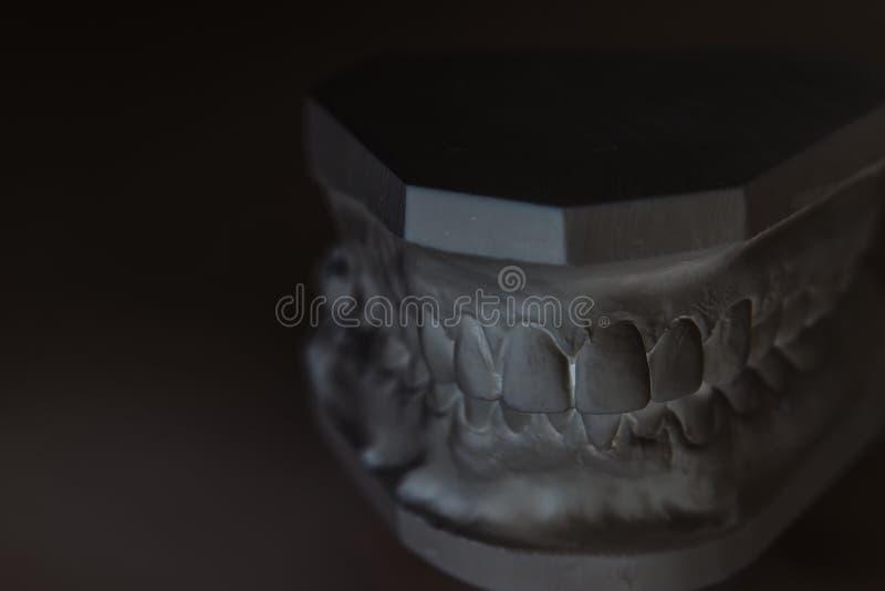 Gipsmodell av den mänskliga käken på en vit bakgrund arkivbild