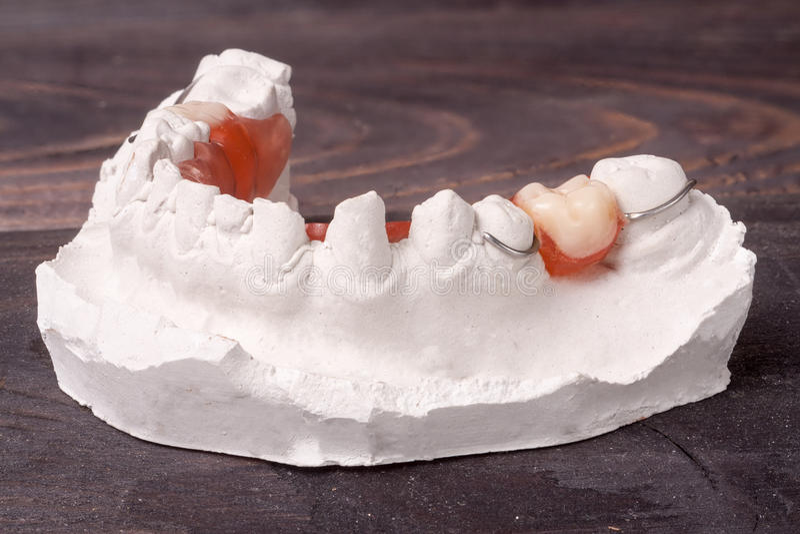 Gipsuje obsadę zęby z usuwalnym częściowym denture na ciemnym drewnianym tle zdjęcia royalty free