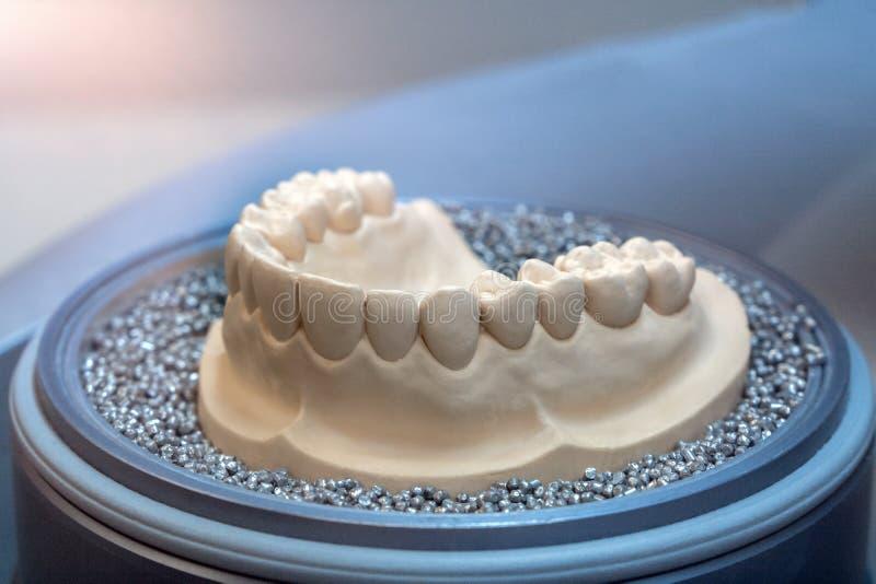 Gipsverbandvorm van de lagere kaak en de tanden royalty-vrije stock afbeelding