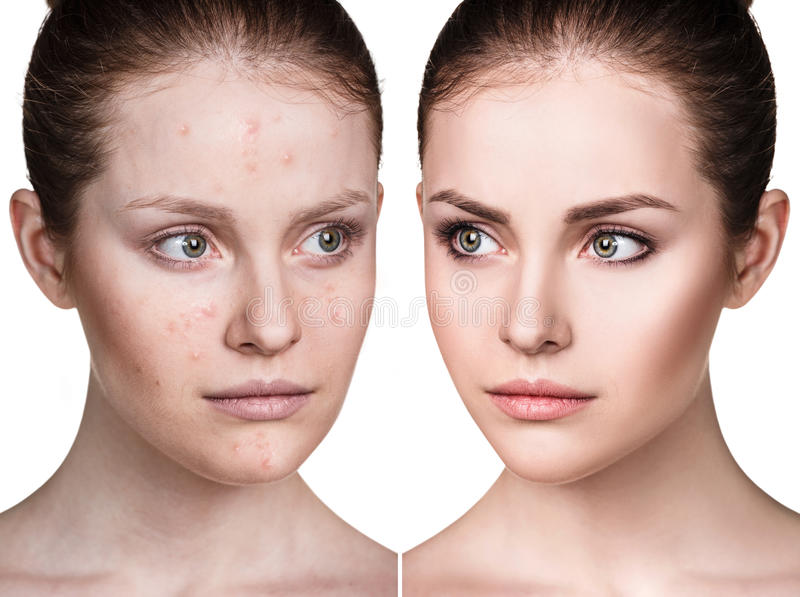 Girl with acne before and after treatment. Comparison portrait of young girl with acne before and after treatment and make-up royalty free stock images