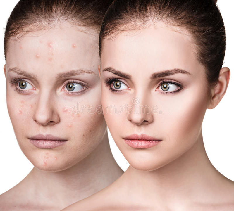 Girl with acne before and after treatment. Comparison portrait of young girl with acne before and after treatment and make-up stock photo