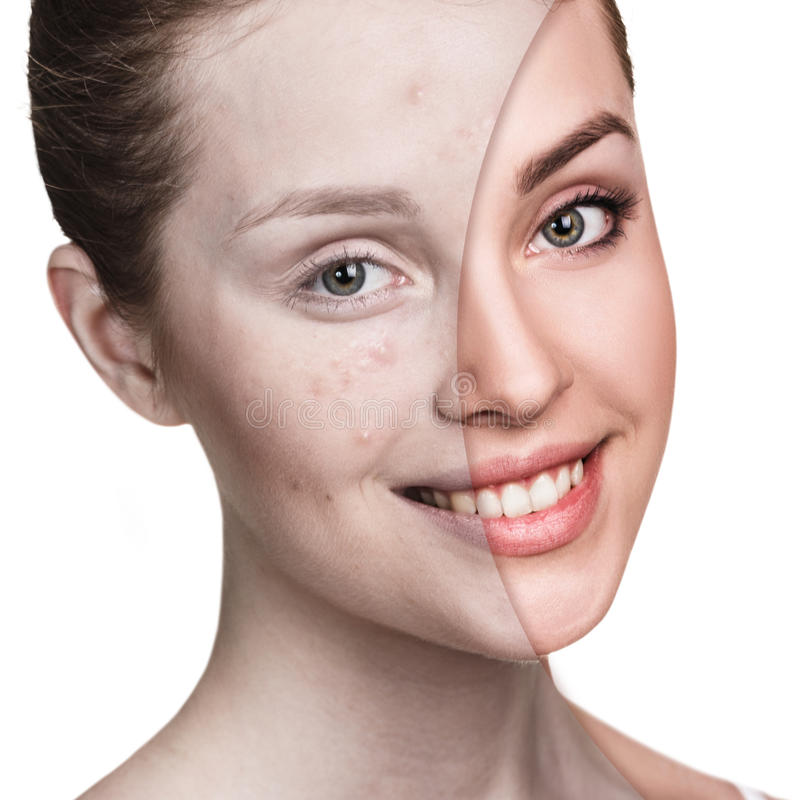 Girl with acne before and after treatment. Comparison portrait of young girl with acne before and after treatment and make-up royalty free stock photos
