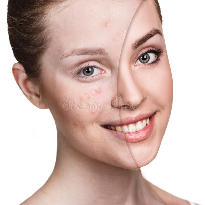 Girl with acne before and after treatment. Comparison portrait of young girl with acne before and after treatment and make-up stock image