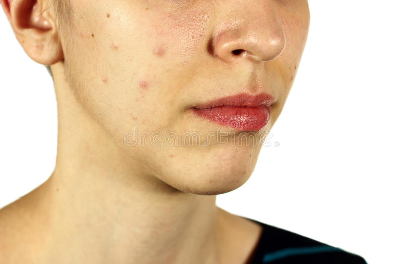 Girl with bad skin acne and black heads royalty free stock image