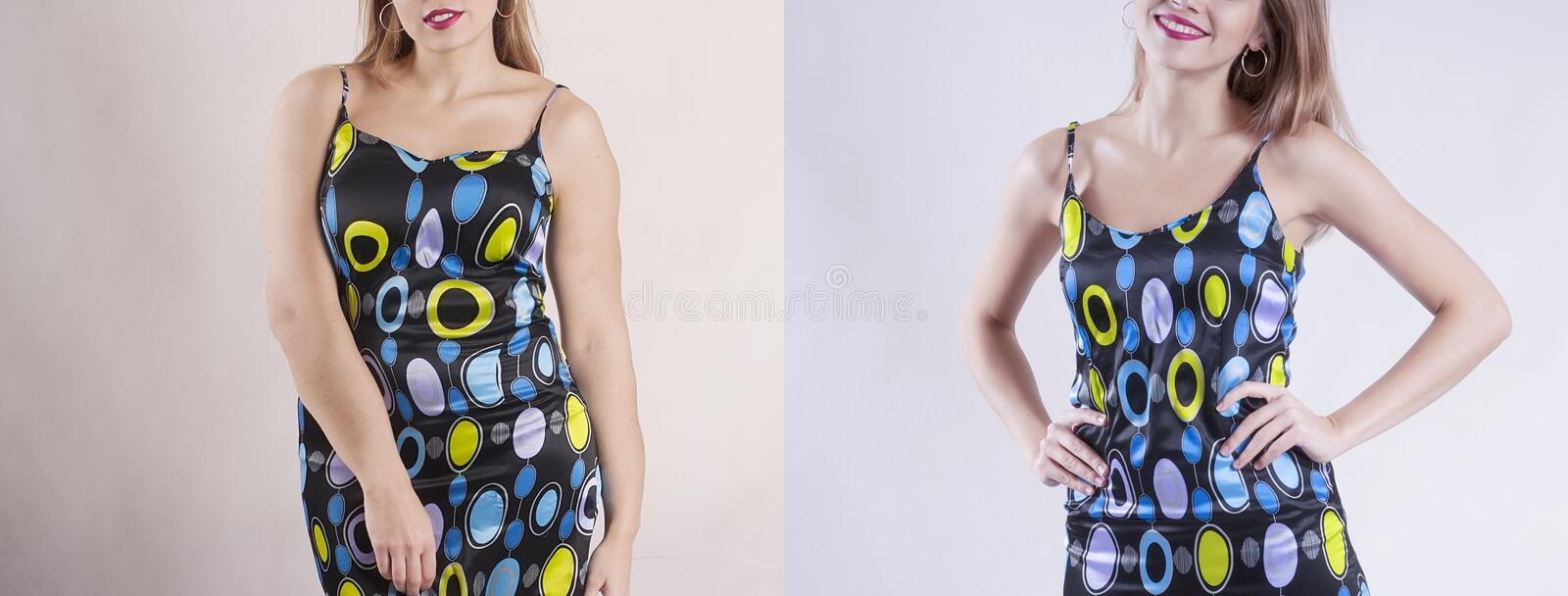 Girl body size problem before and after diet excess loss health stock photo
