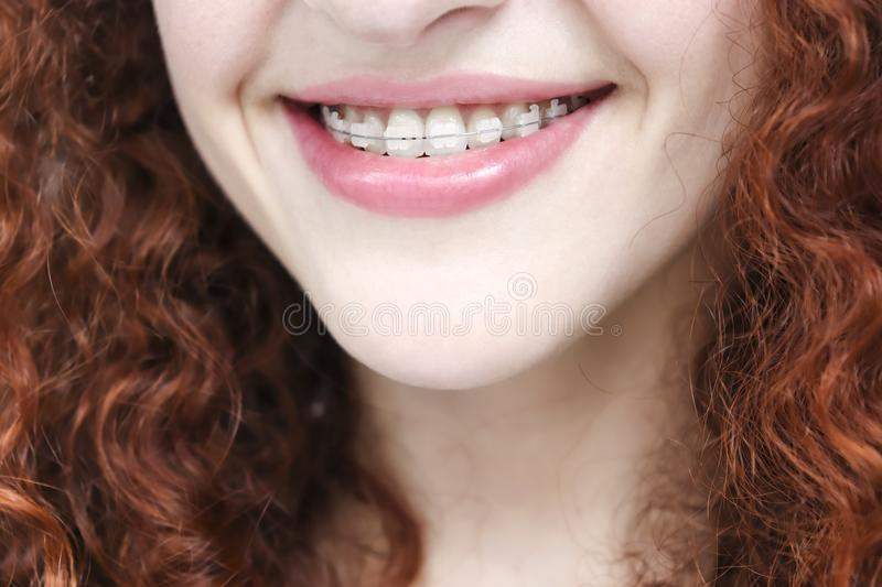Girl in braces with curly red hair. Close up royalty free stock photos