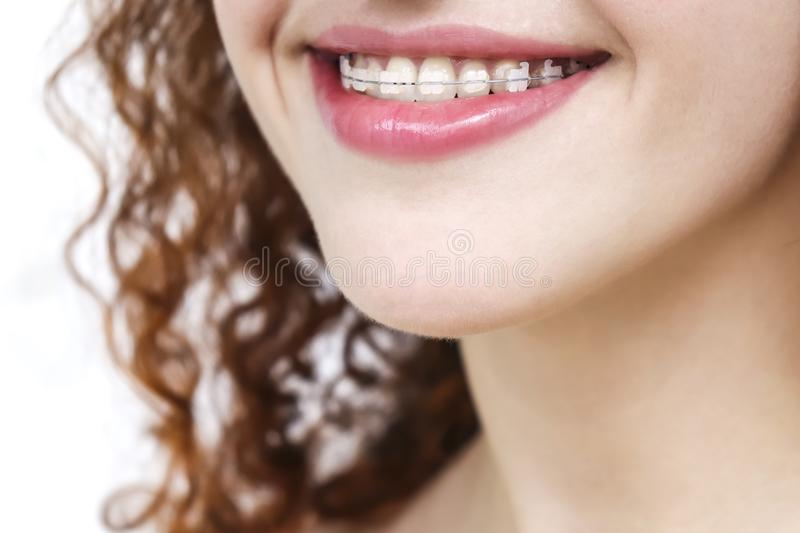Girl in braces. Happy smile Close up royalty free stock photos